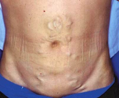 distended stomach due to steroids